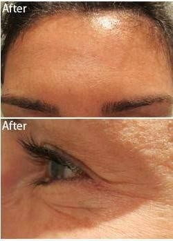 Anti Wrinkle Injections Botox After