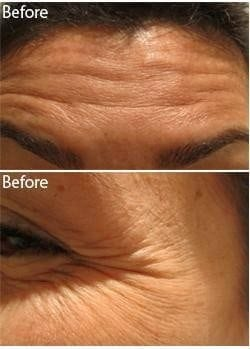Anti Wrinkle Injections Botox Before