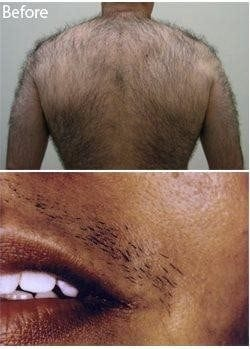 Laser Hair Removal 0 0
