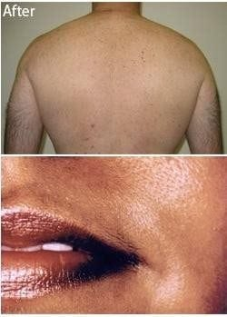 Laser Hair Removal 0 1