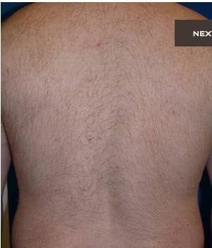 Laser Hair Removal 2 (1)