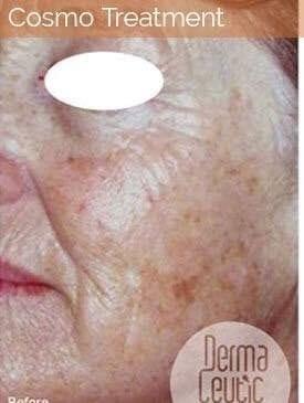 Skin Rejuvenation 3 0 0
