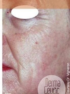 Skin Rejuvenation 3 0 1